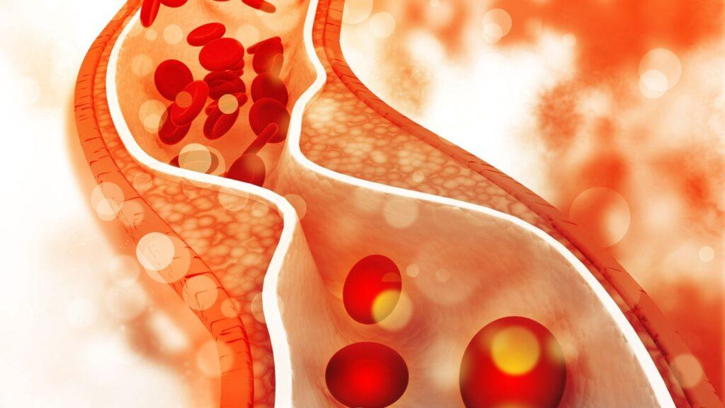 ¿Qué es la aterosclerosis?